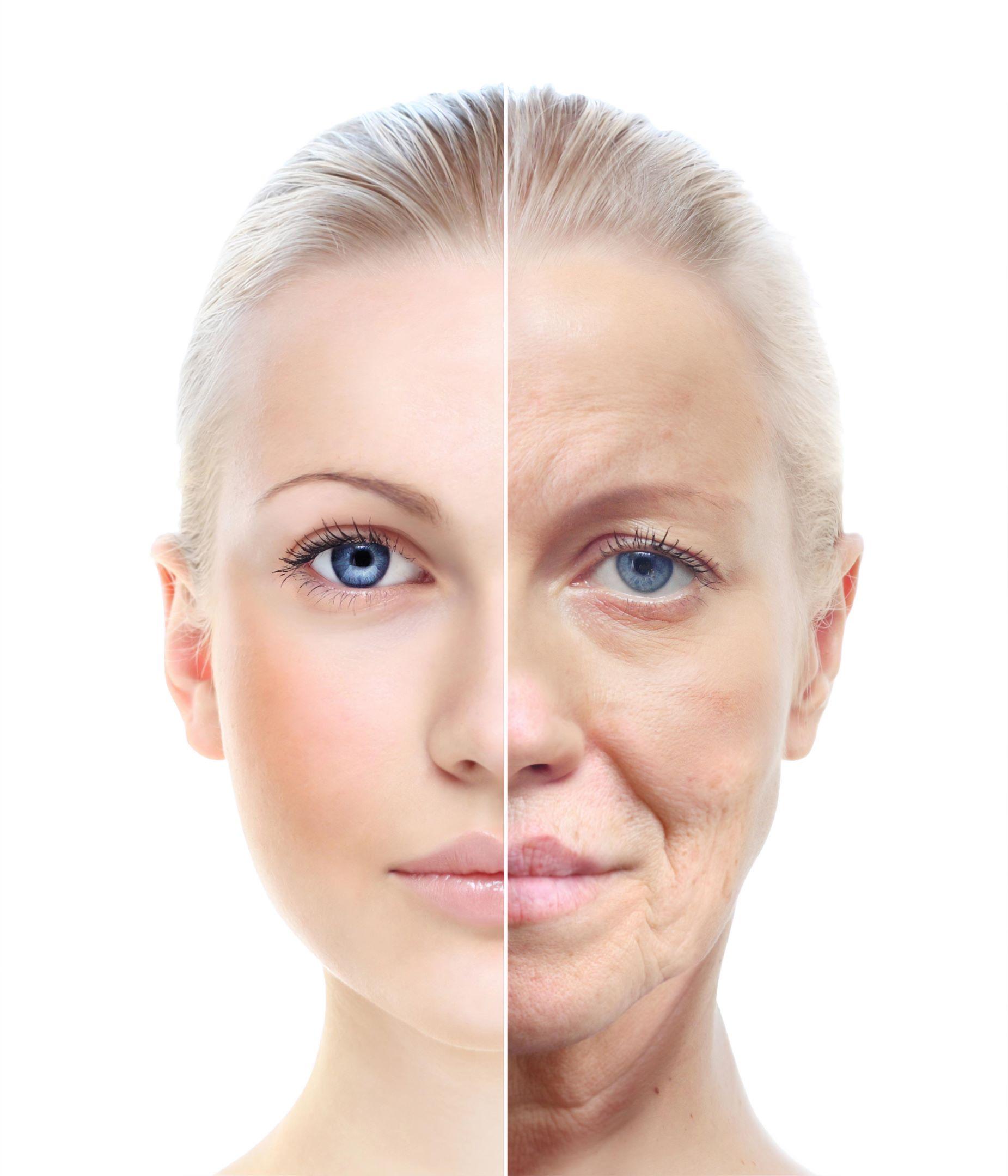 aging ผิวแก่เทียบผิวเด็ก monaclinic